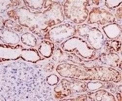 Immunohistochemistry (Formalin/PFA-fixed paraffin-embedded sections) - Anti-Ndufs1 antibody [EPR11522(B)] (ab157221)