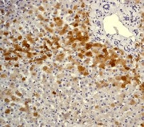 Immunohistochemistry (Formalin/PFA-fixed paraffin-embedded sections) - Anti-C Reactive Protein antibody [Y284] - Low endotoxin, Azide free (ab157242)
