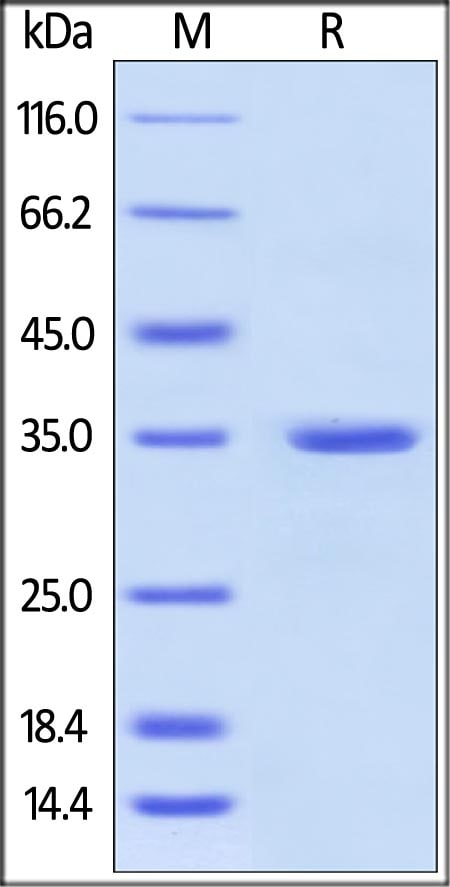 SDS-PAGE - Recombinant Human Annexin V/ANXA5 protein (His tag) (ab157342)