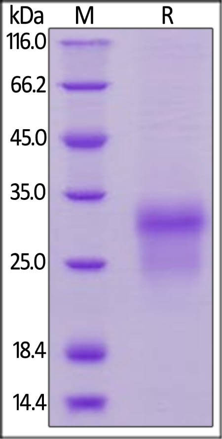 SDS-PAGE - Recombinant human BMPR1A protein (ab157350)