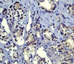Immunohistochemistry (Formalin/PFA-fixed paraffin-embedded sections) - Anti-Smad2 antibody [EP784Y] - BSA and Azide free (ab157371)