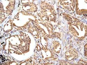Immunohistochemistry (Formalin/PFA-fixed paraffin-embedded sections) - Anti-Smad3 antibody [EP568Y] - BSA and Azide free (ab157372)