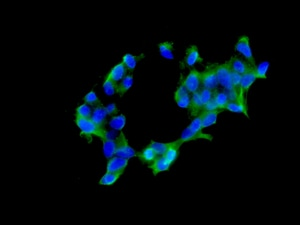 Immunocytochemistry/ Immunofluorescence - Anti-AUH antibody [EPR11086(B)] (ab157453)