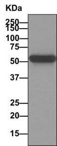 Immunoprecipitation - Anti-p53 (phospho S20) antibody [EPR2156(2)] (ab157454)