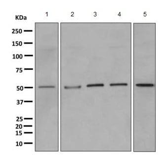 Western blot - Anti-PPP2R2B antibody [EPR10961] (ab157461)