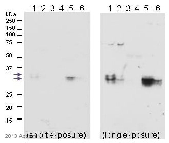 Immunoprecipitation - Anti-MBD3 antibody [EPR9913] - ChIP Grade (ab157464)