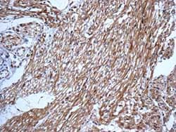 Immunohistochemistry (Formalin/PFA-fixed paraffin-embedded sections) - Anti-DLC-A antibody [EPR11240] (ab157468)