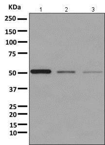 Western blot - Anti-UGPase antibody [EPR10626] (ab157473)