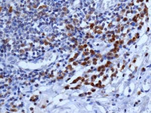 Immunohistochemistry (Formalin/PFA-fixed paraffin-embedded sections) - Anti-ISG20 antibody [EPR8973] (ab157477)
