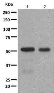 Western blot - Anti-Thromboxane synthase antibody [EPR7333(2)] (ab157481)