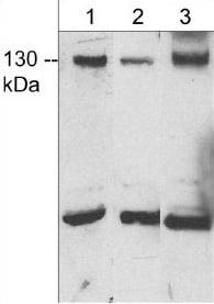Western blot - Anti-JMY antibody - C-terminal (ab157586)