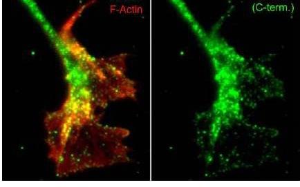 Immunocytochemistry/ Immunofluorescence - Anti-WASH1 antibody - C-terminal (ab157592)
