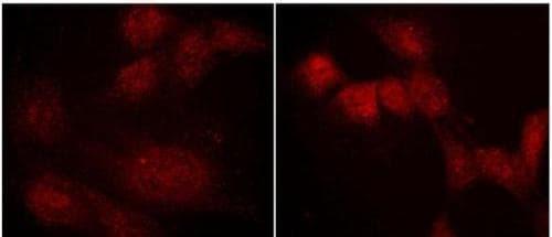Immunocytochemistry/ Immunofluorescence - Anti-Ephexin-1 antibody - C-terminal (ab157593)