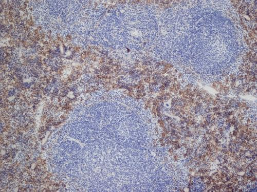 Immunohistochemistry (Frozen sections) - Anti-DECTIN 2 antibody [D2.11E4] - Low endotoxin, Azide free (ab157685)