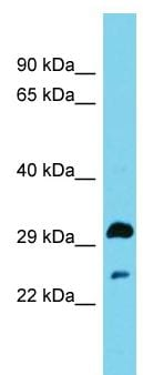 Western blot - Anti-HSD17B13 antibody - N-terminal (ab157797)