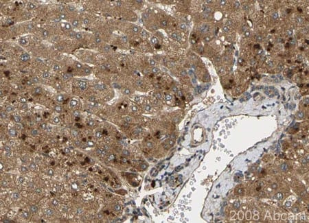 Immunohistochemistry (Formalin/PFA-fixed paraffin-embedded sections) - Anti-Noggin antibody (ab16054)