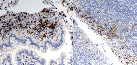 Immunohistochemistry (Formalin/PFA-fixed paraffin-embedded sections) - Anti-HIF-1 alpha antibody [mgc3] (ab16066)