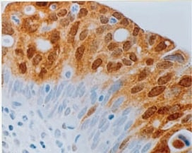 Immunohistochemistry (Formalin/PFA-fixed paraffin-embedded sections) - Anti-CDKN2A/p16INK4a antibody [DCS50.1] (ab16123)