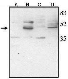 Western blot - Anti-CHX10 antibody (ab16141)