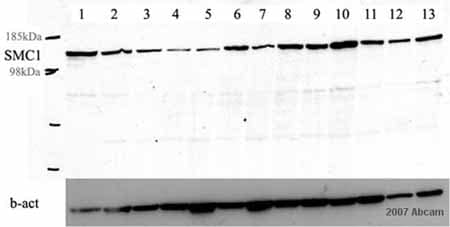 Western blot - Anti-SMC1 antibody [C2M] (ab16147)