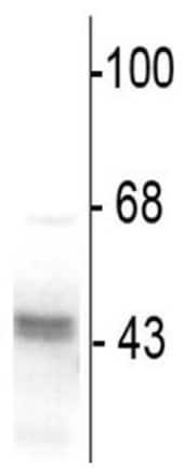 Western blot - Anti-GABA A Receptor gamma 2/GABRG2 antibody (ab16213)