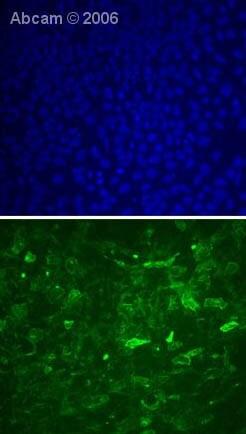 Immunocytochemistry/ Immunofluorescence - Anti-TRA-1-81 antibody [TRA-1-81] (ab16289)
