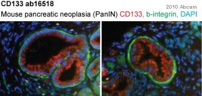 Immunohistochemistry (Frozen sections) - Anti-CD133 antibody - Stem Cell Marker (ab16518)