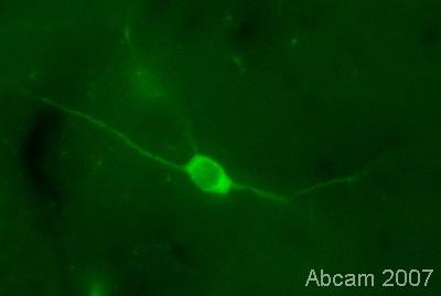 Immunohistochemistry (PFA perfusion fixed frozen sections) - Anti-nNOS (neuronal) (phospho S847) antibody (ab16650)