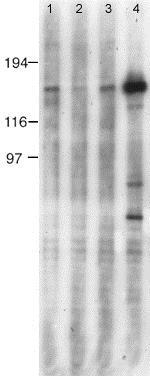Western blot - Anti-nNOS (neuronal) (phospho S847) antibody (ab16650)