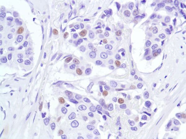 Immunohistochemistry (Formalin/PFA-fixed paraffin-embedded sections) - Anti-p53 antibody [SP5] (ab16665)