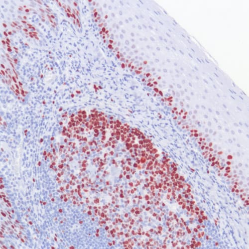 Immunohistochemistry (Formalin/PFA-fixed paraffin-embedded sections) - Anti-Ki67 antibody [SP6] (ab16667)