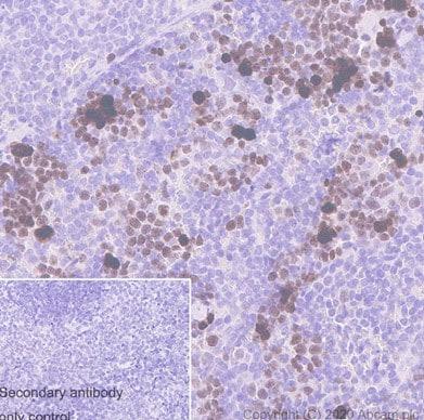 Immunohistochemistry (Formalin/PFA-fixed paraffin-embedded sections) - Anti-Ki67 antibody [SP6] (ab16667)