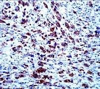 Immunohistochemistry (Formalin/PFA-fixed paraffin-embedded sections) - Anti-ALK antibody [SP8] (ab16670)