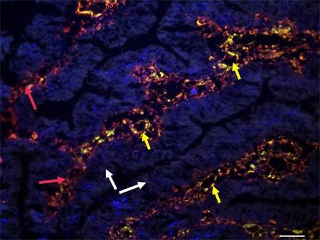 免疫组织化学(冰冻切片)-抗波形蛋白抗体[SP20](AB16700)