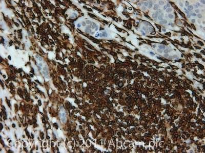 免疫组化(福尔马林/PFA固定石蜡切片)抗波形蛋白抗体[SP20](AB16700)