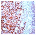 Immunohistochemistry (Formalin/PFA-fixed paraffin-embedded sections) - Anti-CD23 antibody [SP23] (ab16702)