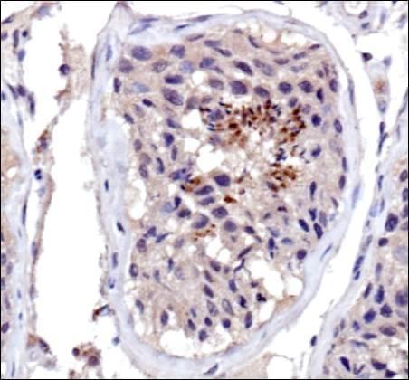 Immunohistochemistry (Formalin/PFA-fixed paraffin-embedded sections) - Anti-Dnmt3a antibody (ab16704)