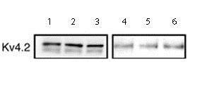Western blot - Anti-Kv4.2/KCND2 antibody (ab16719)