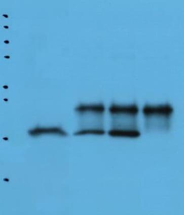 Immunoprecipitation - Anti-Glutathione Peroxidase 4 antibody [1H11] (ab16739)