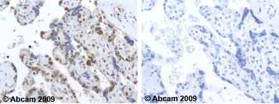 Immunohistochemistry (Formalin/PFA-fixed paraffin-embedded sections) - Anti-Glutathione Reductase antibody (ab16801)