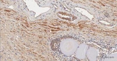 Immunohistochemistry (Formalin/PFA-fixed paraffin-embedded sections) - Anti-FGF2 antibody (ab16828)