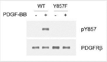 Western blot - Anti-PDGFR beta (phospho Y857) antibody (ab16866)