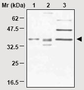 Western blot - Anti-CSPS/STM antibody (ab16870)