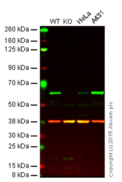 Western blot - Anti-Src antibody [Clone 327] (ab16885)