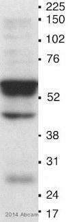 Western blot - Anti-MDM2 antibody [2A10] (ab16895)