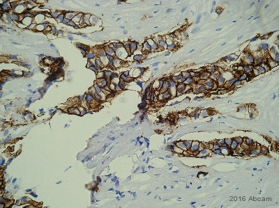 Immunohistochemistry (Formalin/PFA-fixed paraffin-embedded sections) - Anti-ErbB 2 antibody [3B5] (ab16901)