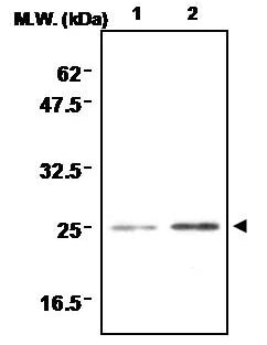 Immunoprecipitation - Anti-SOD2/MnSOD antibody [1AE] (ab16952)
