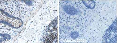 Immunohistochemistry (Formalin/PFA-fixed paraffin-embedded sections) - Anti-SOD2/MnSOD antibody [2A1] (ab16956)