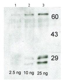 Western blot - Anti-Casein  antibody (ab166596)