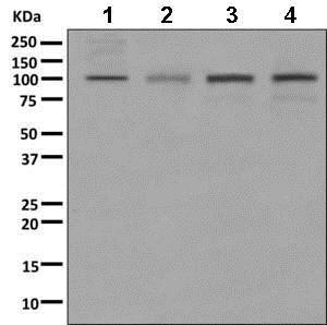 Western blot - Anti-GABA B Receptor 1 antibody [EPR9404] (ab166604)